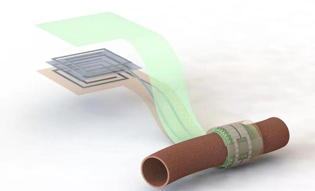美国斯坦福大学开发新型可降解的血流传感器